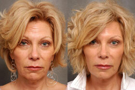 Photo 1 before and after the application of Cream Goji