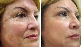fractional skin rejuvenation before and after pictures